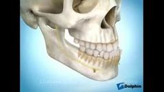 درد فک پایین نشانه چیست؟