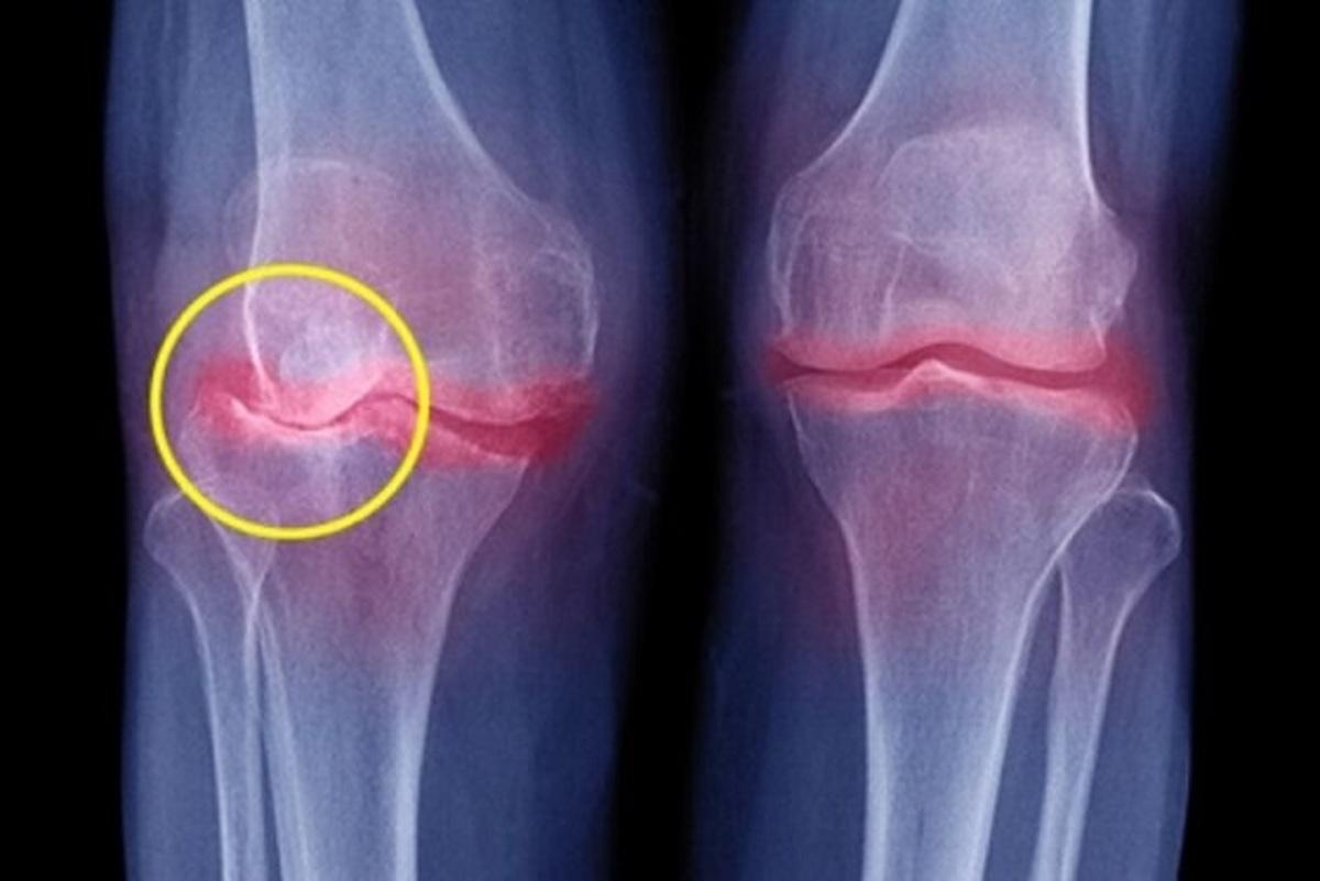 آسیب های مفصلی ناشی از اضافه وزن، یکی از اثرات کروناست