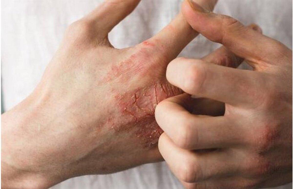 چند توصیه برای کاهش خشکی پوست
