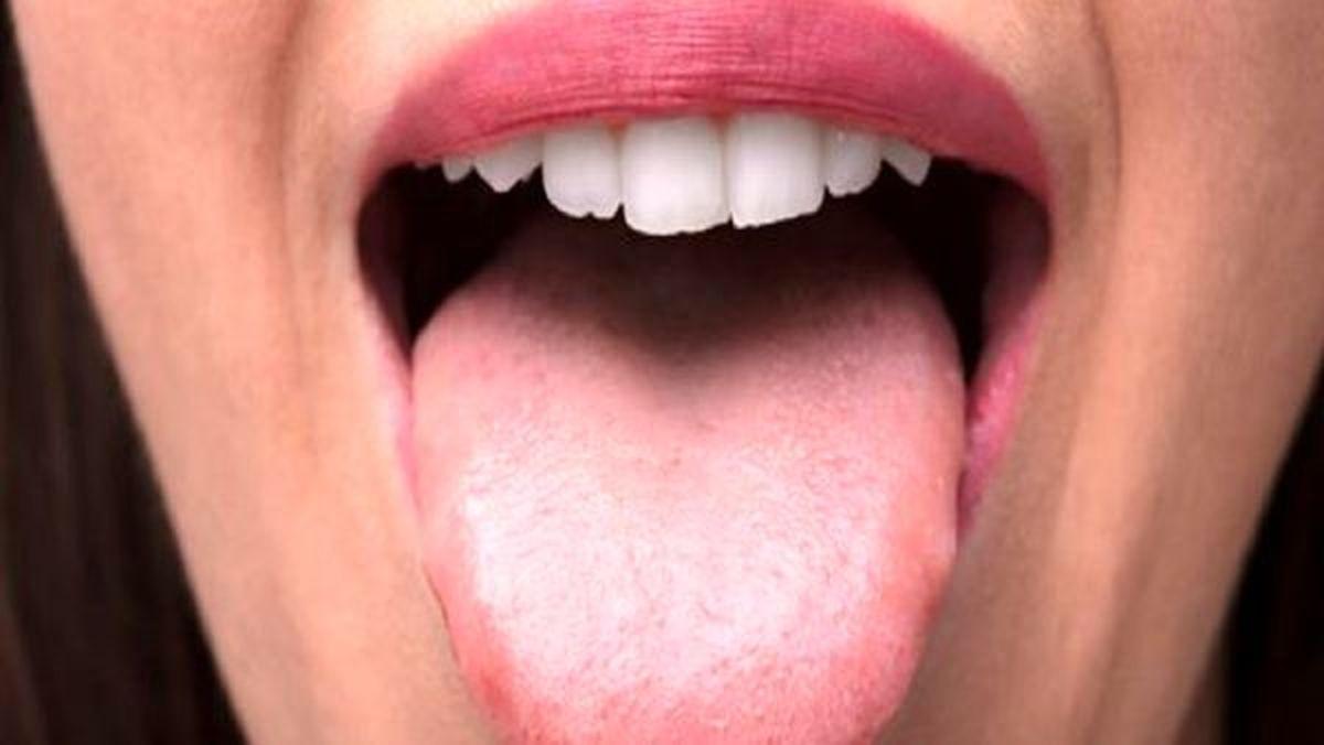 سرطان زبان را با این ۳ نشانه تشخیص دهید