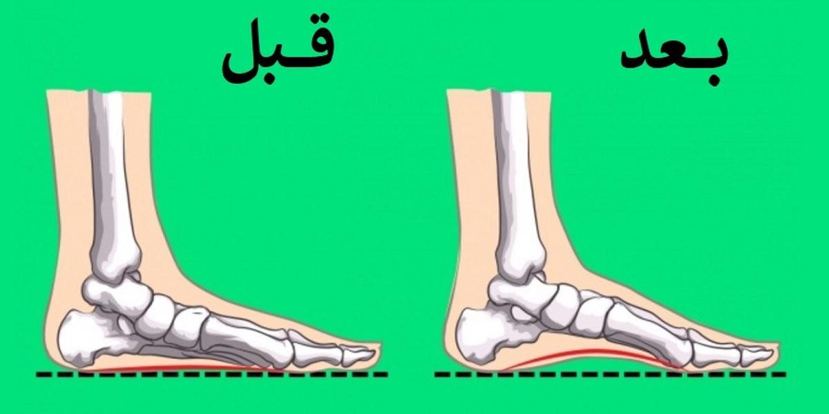 با چند تمرین ساده مشکل صافی کف پا را کاهش دهید