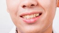 این خوراکی ها دندان ها را زرد می کنند