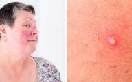 ۷ بیماری پوستی که با جوش اشتباه گرفته می شوند