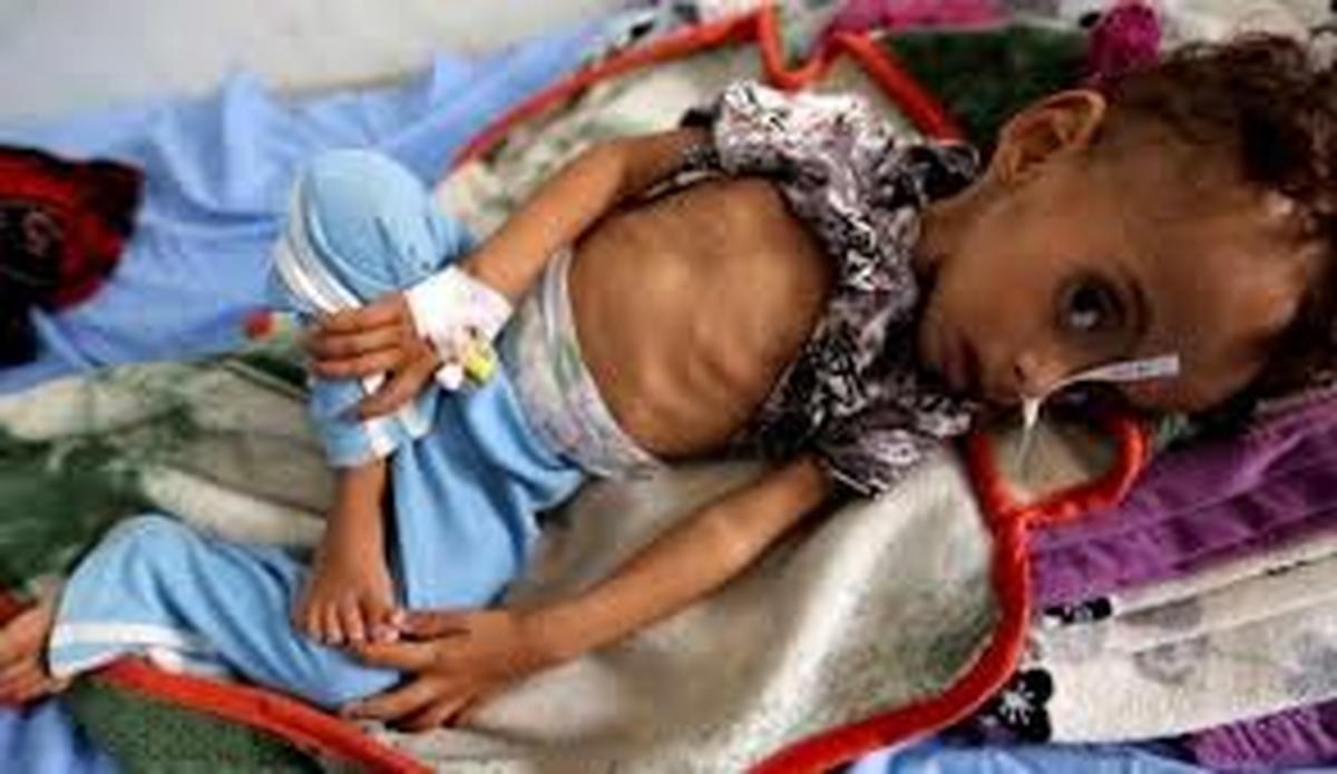 هشدار سازمان ملل  |  «شمارش معکوس تا فاجعه در یمن»