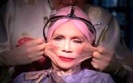 عجیبترین جراحیهای زیبایی در دنیا  +عکس