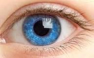بیماریهایی که از راه چشم شناسایی میشوند