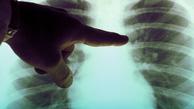 ژنهایی که عامل مرگ زودرس افراد مبتلا به سرطان ریه هستند شناسایی شدند