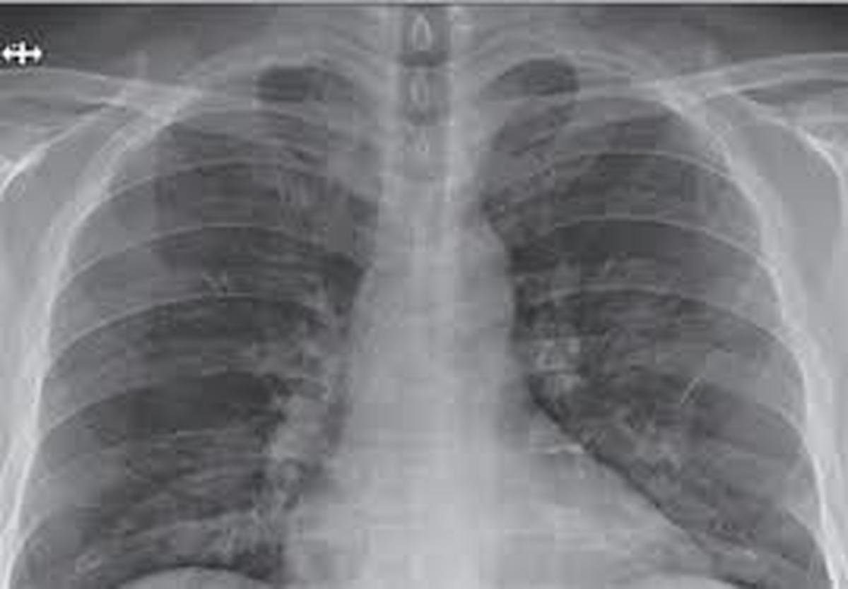 نوعی بیماری کشنده که افراد سیگاری را تهدید میکند