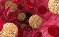 علائم و نشانه های کلسترول بالا رابشناسید