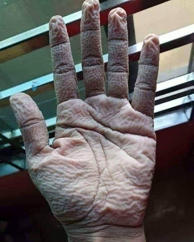 عکس شوکه کننده از دست پرستار بخش کرونا
