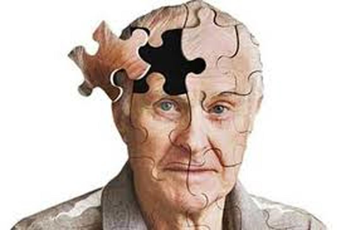 مهمترین عوامل برای پیشگیری از بیماری آلزایمر