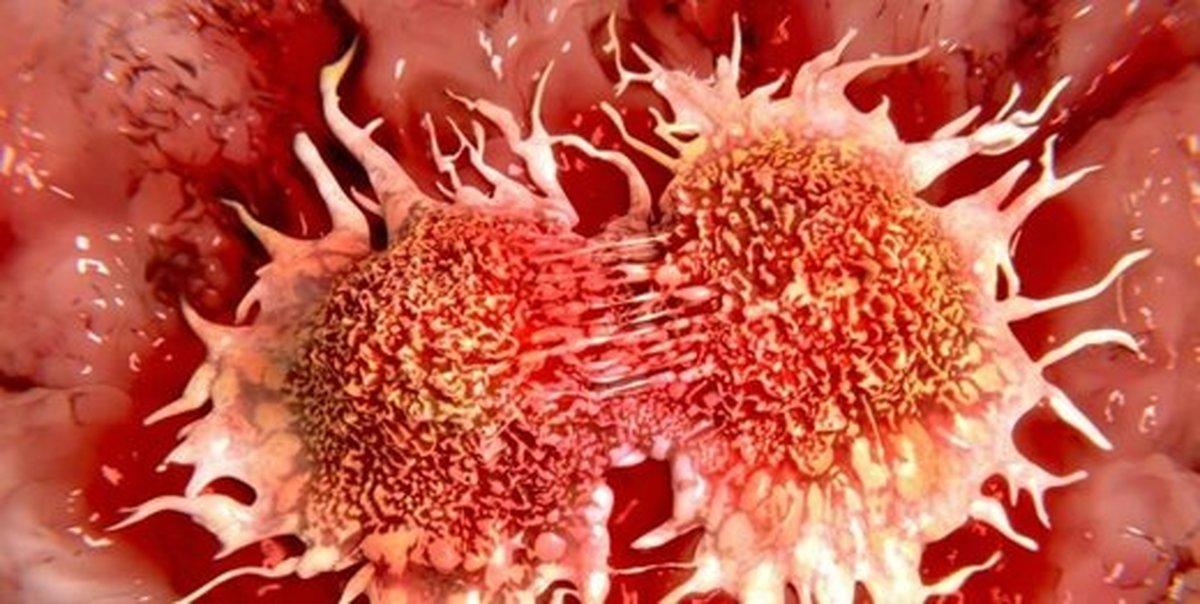 چه چیزی باعث بروز سرطان سینه میشود؟