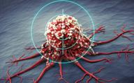 علایم و درمان سومین سرطان شایع زنان   مردان هم میتوانند واکسن HPV بزنند