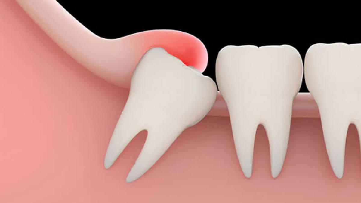 افتادن دندان در میانسالی نشانه کدام بیماری است؟