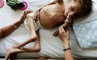 ۳۰ درصد کودکان دنیا از سوءتغذیه شدید رنج می برند