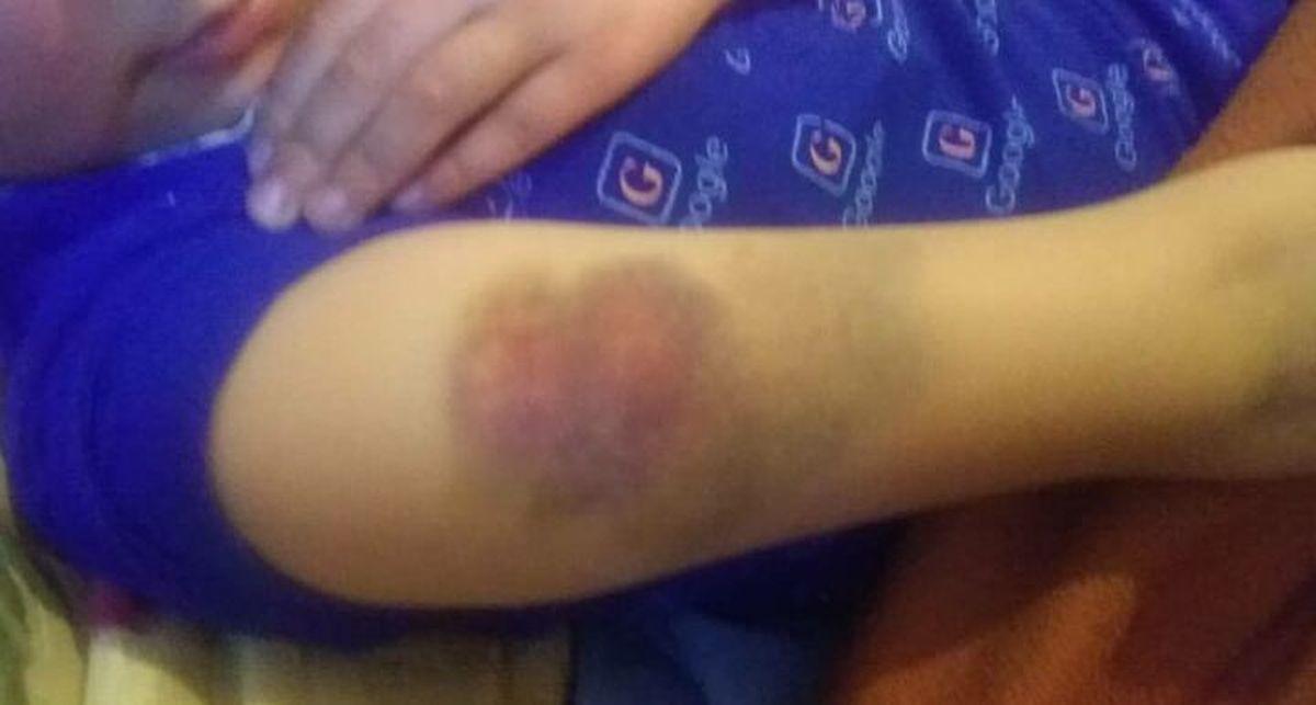 تنبیه دانش آموز در قزوین