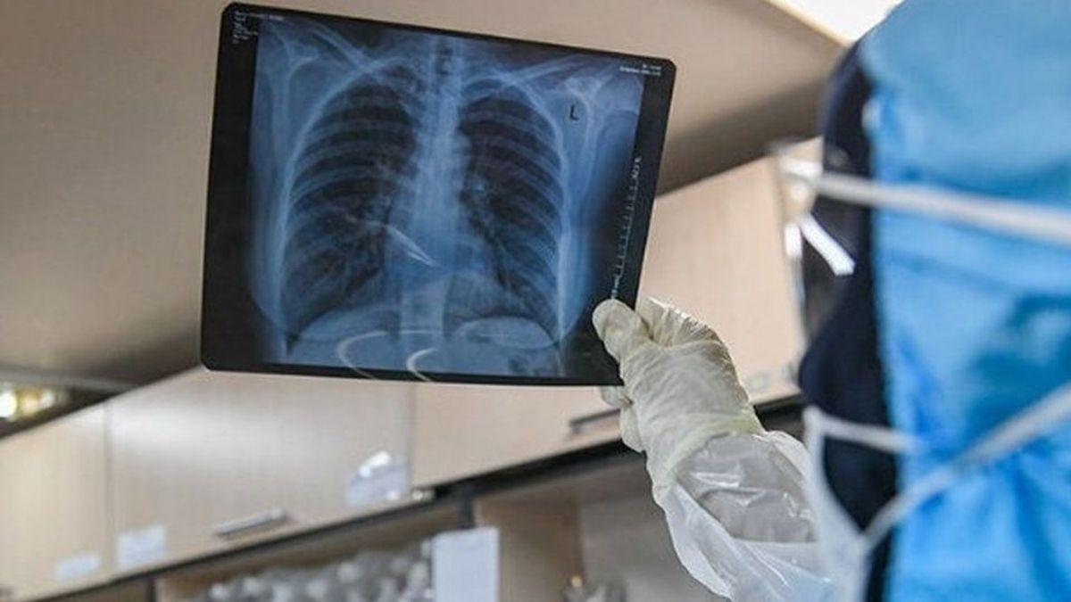 علل ابتلا به سرطان ریه + جزئیات