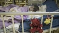 اهواز/ افزایش بیش از 2 برابری بستری کودکان کرونایی