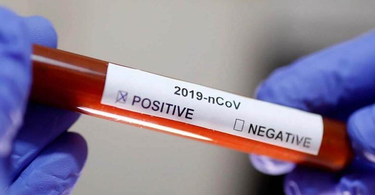 تست PCR کرونا تا چه زمانی مثبت میماند؟