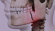 ۸۷ درصد کودکان ایرانی زیر ۶ سال دندان پوسیده دارند