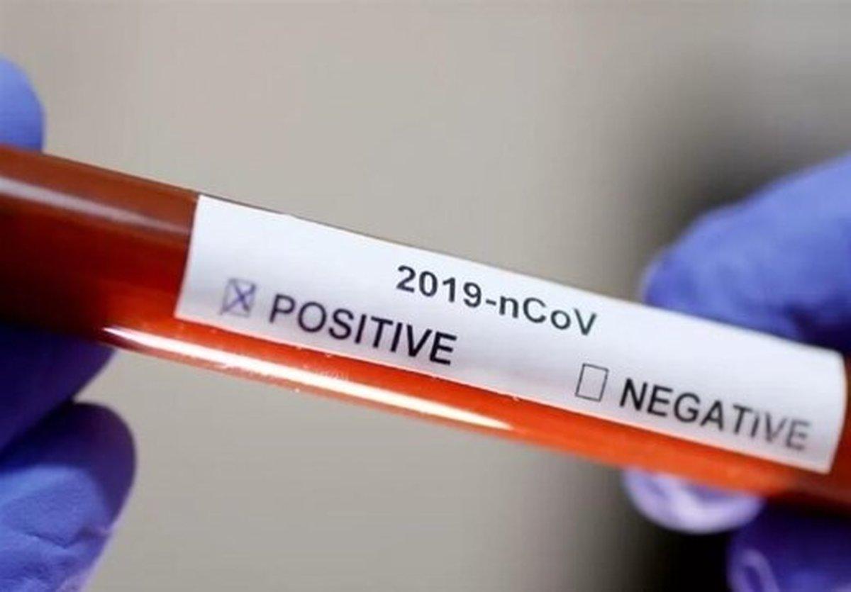 عده ای هنوز کرونا را شوخی گرفته اند/ این ویروس خطرناک و کشنده است