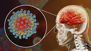 اختلال در هوشیاری و عفونت مغز از عواقب تاثیر کرونا بر سیستم عصبی است