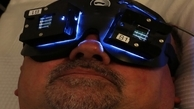 درمان آلزایمر با نور درمانی!