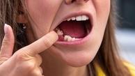افتادن ناگهانی دندان ها عارضه جانبی جدید کرونا