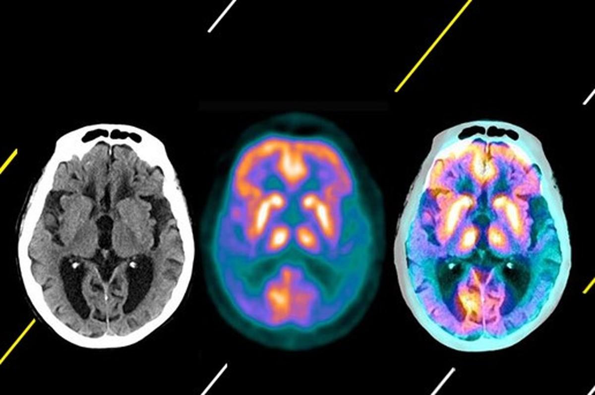 دارویی علیه فراموشی! ماجرای داروی جدید آلزایمر چیست؟