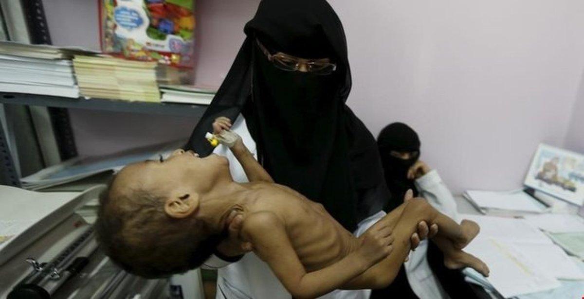 روآوردن  یمنیها از روی فقر به گدایی، کار و ازدواج کودکان