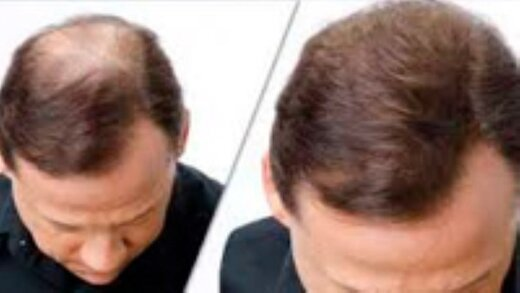 چه ویتامین هایی برای رشد بهتر مو موثر است؟