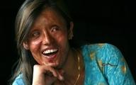 پوست مصنوعی جدید؛ امیدی تازه برای قربانیان اسید پاشی و سوختگی های شدید